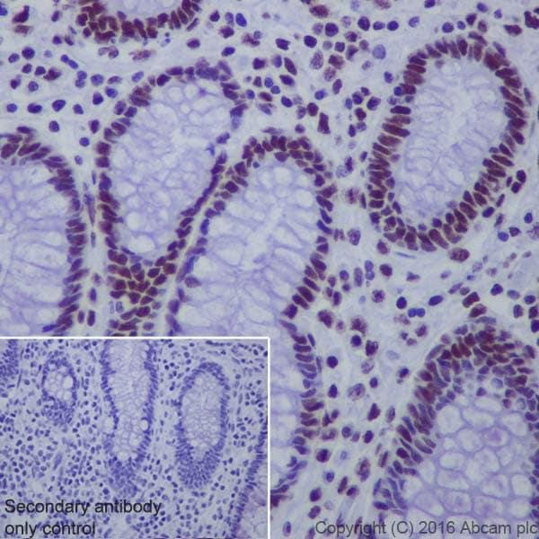 Immunohistochemistry (Formalin/PFA-fixed paraffin-embedded sections) - Anti-Matrin 3 antibody [EPR10635(B)] (ab151714)