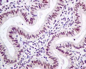 Immunohistochemistry (Formalin/PFA-fixed paraffin-embedded sections) - Anti-LSM5 antibody [EPR10691(B)] (ab151717)