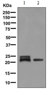 Western blot - Anti-beta Crystallin A3 antibody [EPR9586] (ab151722)