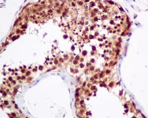 Immunohistochemistry (Formalin/PFA-fixed paraffin-embedded sections) - Anti-UBXN1 antibody [EPR9136] (ab151723)