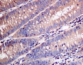 Immunohistochemistry (Formalin/PFA-fixed paraffin-embedded sections) - Anti-Arp3 antibody [EPR10428(B)] (ab151729)