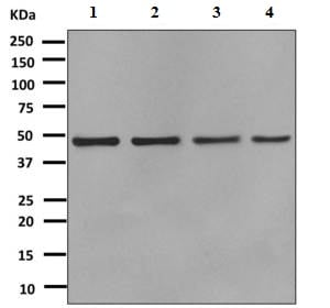 Western blot - Anti-Arp3 antibody [EPR10428(B)] (ab151729)