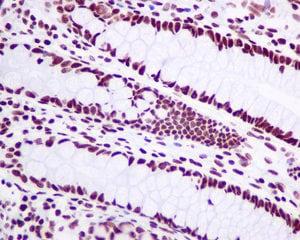 Immunohistochemistry (Formalin/PFA-fixed paraffin-embedded sections) - Anti-Matrin 3 antibody [EPR10634(B)] (ab151739)