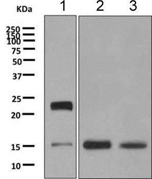 Western blot - Anti-MYL1 antibody [EPR9934(B)] (ab151749)