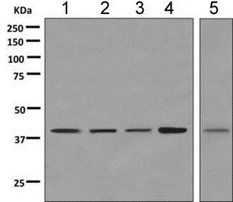 Western blot - Anti-VPS37C antibody [EPR9559] (ab151753)
