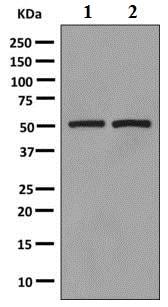 Western blot - Anti-FAM134B antibody [EPR10608(B)] (ab151755)