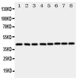 Western blot - Anti-Ataxin 3 antibody (ab151764)