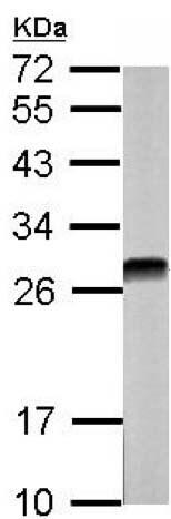 Western blot - Anti-Casein Kinase 2 beta antibody (ab151784)