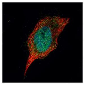 Immunocytochemistry/ Immunofluorescence - Anti-Casein Kinase 1 delta/CSNK1D antibody (ab151793)
