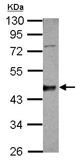 Western blot - Anti-Casein Kinase 1 delta/CSNK1D antibody (ab151793)