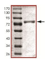 SDS-PAGE - Recombinant Human PFKFB1 protein (ab151800)