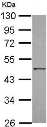 Western blot - Anti-ZIP Kinase antibody (ab151956)