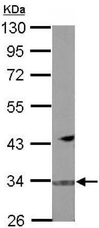 Western blot - Anti-FBXO16 antibody (ab151964)