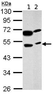 Western blot - Anti-PRSS35 antibody (ab151970)