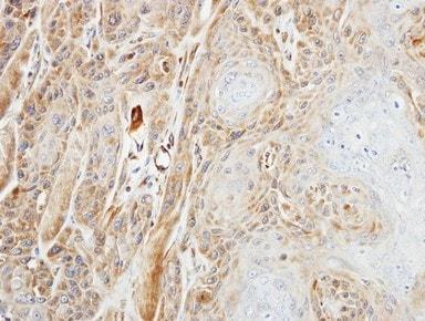 Immunohistochemistry (Formalin/PFA-fixed paraffin-embedded sections) - Anti-DDX6 antibody (ab151984)