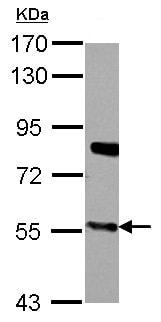 Western blot - Anti-CYP27A1 antibody (ab151987)