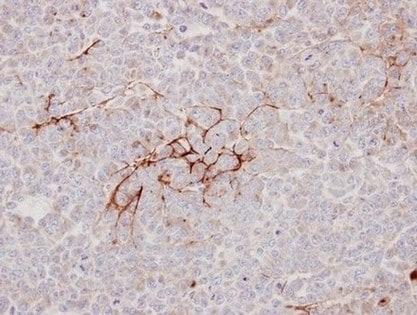 Immunohistochemistry (Formalin/PFA-fixed paraffin-embedded sections) - Anti-Decorin antibody (ab151988)