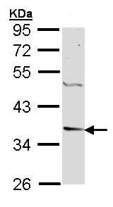 Western blot - Anti-Decorin antibody (ab151988)