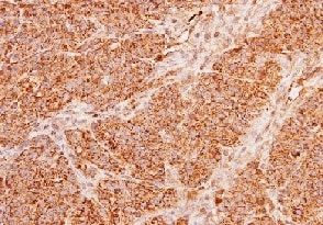 Immunohistochemistry (Formalin/PFA-fixed paraffin-embedded sections) - Anti-ACADM/MCAD antibody (ab152115)