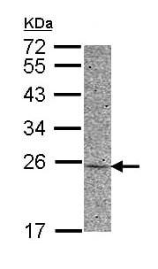 Western blot - Anti-AK 1 antibody (ab152117)