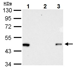 Immunoprecipitation - Anti-RFP antibody (ab152123)