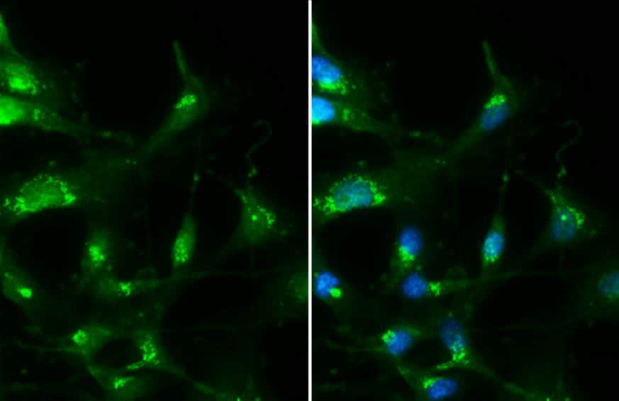 Immunocytochemistry/ Immunofluorescence - Anti-RAB35 antibody (ab152138)