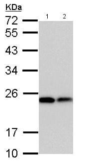 Western blot - Anti-Dihydrofolate reductase (DHFR) antibody (ab152159)