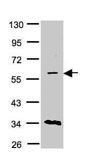 Western blot - Anti-CRAT antibody (ab153699)
