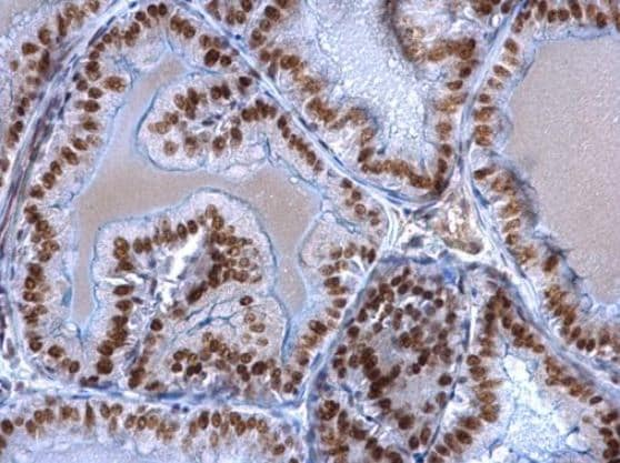 Immunohistochemistry (Formalin/PFA-fixed paraffin-embedded sections) - Anti-EWSR1/EWS antibody (ab153719)