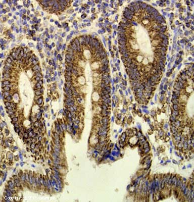 Immunohistochemistry (Formalin/PFA-fixed paraffin-embedded sections) - Anti-ECH1 antibody (ab153720)