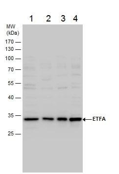 Western blot - Anti-ETFA antibody (ab153722)