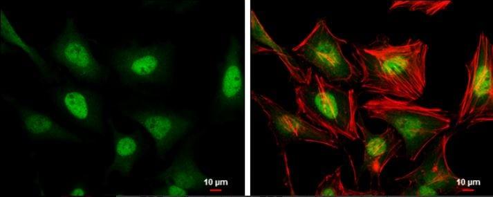 Immunocytochemistry/ Immunofluorescence - Anti-ERF antibody (ab153726)