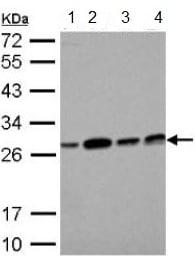 Western blot - Anti-ECHS1 antibody (ab153732)