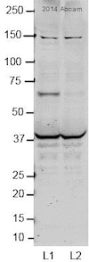 Western blot - Anti-CRAT antibody (ab153750)