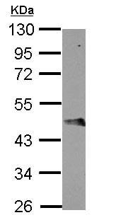 Western blot - Anti-FBXO4/FBX4 antibody (ab153803)