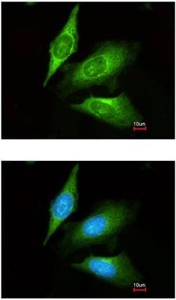 Immunocytochemistry/ Immunofluorescence - Anti-TMED4 antibody (ab153814)
