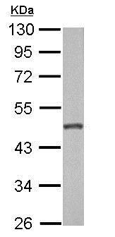 Western blot - Anti-GALK2 antibody (ab153815)