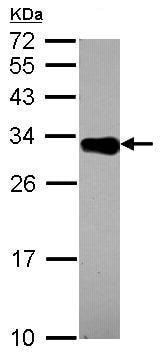 Western blot - Anti-DECR2/PDCR antibody (ab153849)