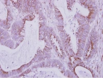 Immunohistochemistry (Formalin/PFA-fixed paraffin-embedded sections) - Anti-FbxO6 antibody (ab153853)