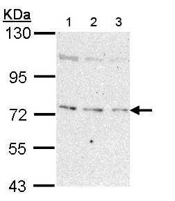 Western blot - Anti-NEK8 antibody - N-terminal (ab153879)