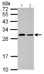 Western blot - Anti-C1ORF111 antibody (ab153905)