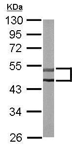 Western blot - Anti-PKE antibody (ab153917)