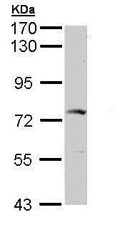 Western blot - Anti-GGA2 antibody (ab153928)