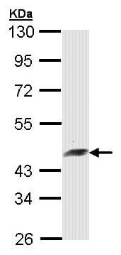Western blot - Anti-POR1 antibody (ab153952)