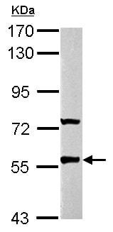 Western blot - Anti-GABRR2 antibody (ab153961)