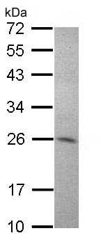 Western blot - Anti-Amisyn antibody - N-terminal (ab153974)