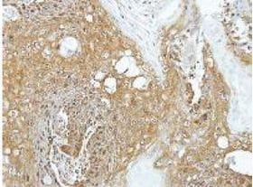 Immunohistochemistry (Formalin/PFA-fixed paraffin-embedded sections) - Anti-eIF3K antibody (ab153985)
