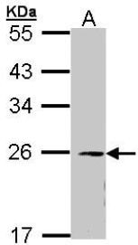 Western blot - Anti-eIF3K antibody (ab153985)