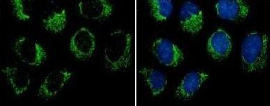 Immunocytochemistry/ Immunofluorescence - Anti-GPCR GPR32 antibody - N-terminal (ab153989)