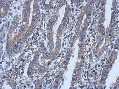 Immunohistochemistry (Formalin/PFA-fixed paraffin-embedded sections) - Anti-LPLA2 antibody (ab154012)